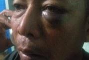 "Dipicu Pukuli Petugas Dishub Samosir ""Akhirnya diciduk Polisi."